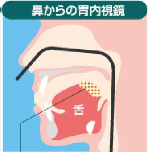 鼻から胃カメラのイメージ